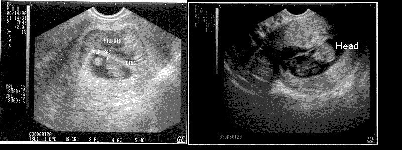 9 and 11 week sonograms